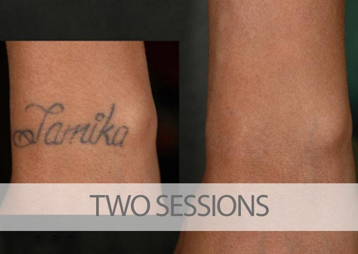 Example of client treatment after two sessions yelp for Tattoo laser removal near me