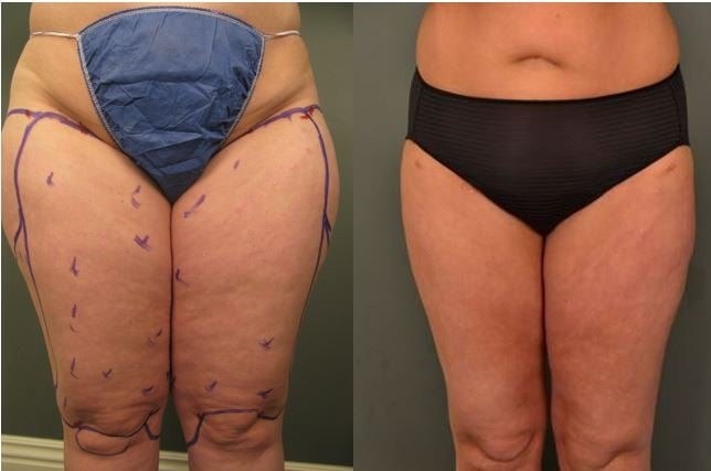 Before and after inner, outer and anterior thigh liposuction