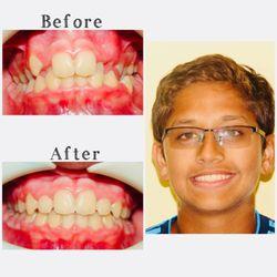 Twin Oaks Orthodontics - CLOSED - 98 Photos & 11 Reviews