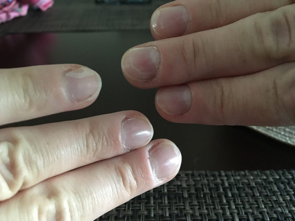 Peeling gross fingernails after 24 hours yelp for 24 hr nail salon nyc