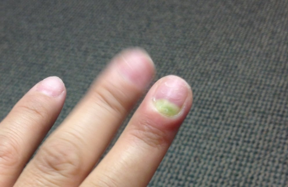 My infected finger after getting my nails done. I took the acrylics ...