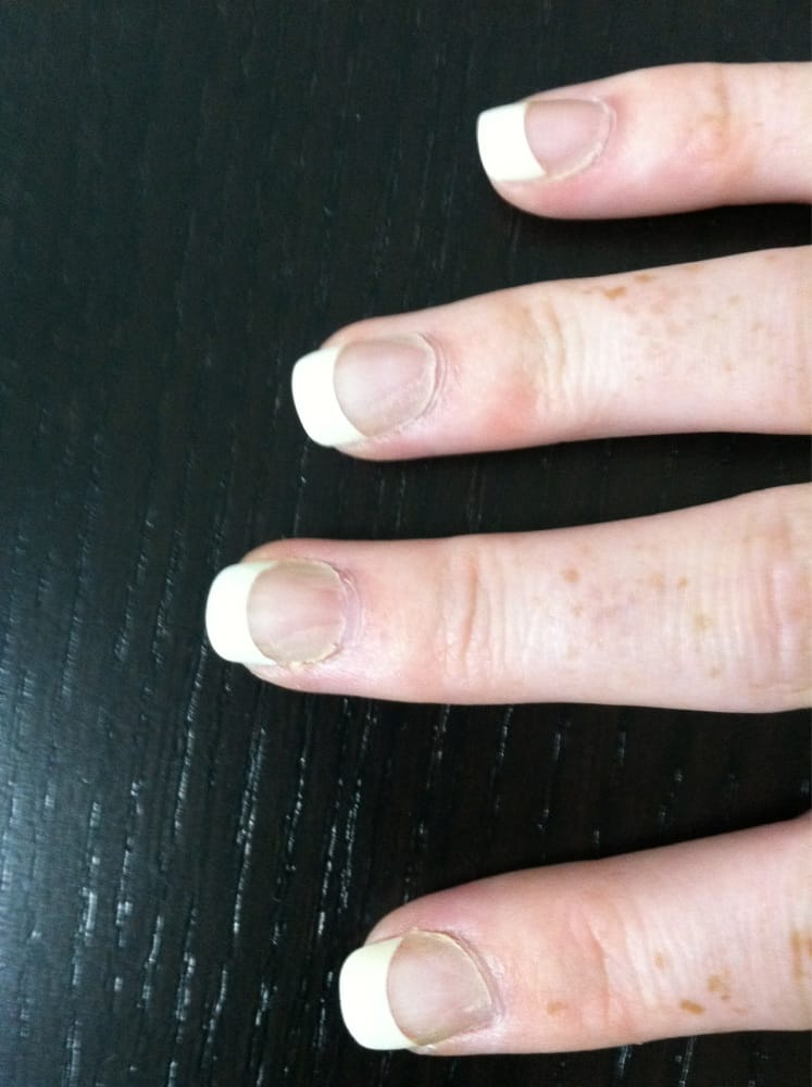 What acrylic nails look like after one week!!! All the sides are ...