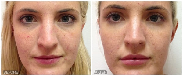 TREATMENT: Mid face, Tear Trough, and lips  Juvederm 2 syringes