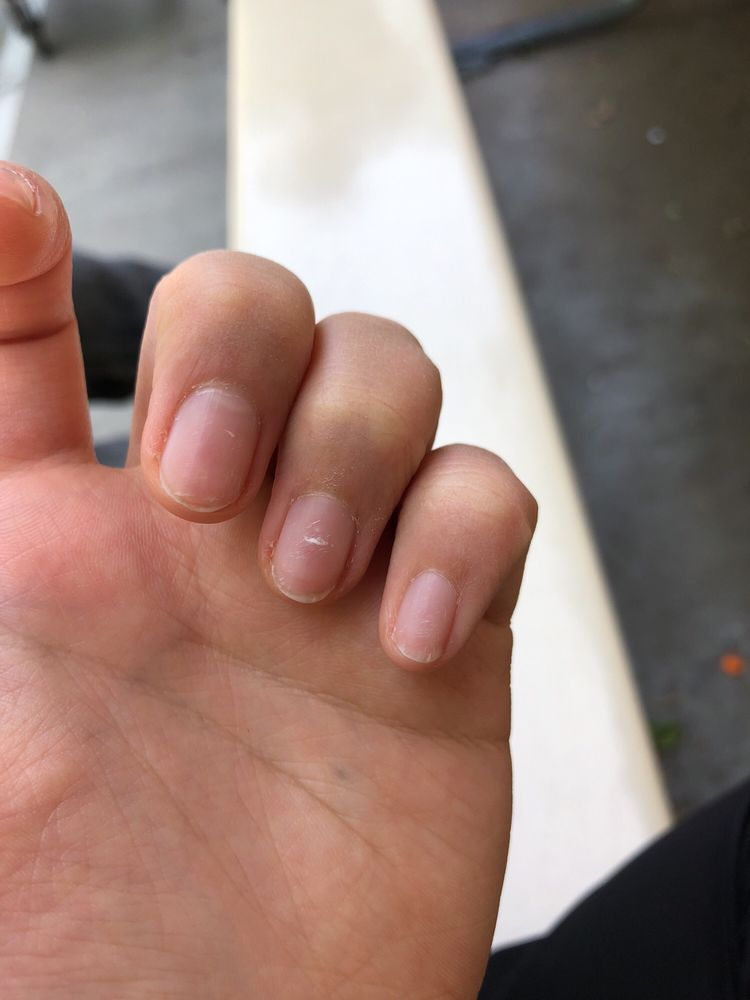 Ring finger nail and pinky nail both cut SO UNEVENLY I\'m so unhappy ...