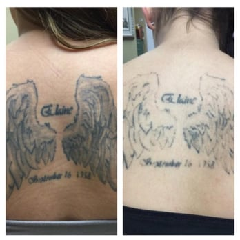 Before/After ONE session with PicoTechnology at Absolute Laser ...