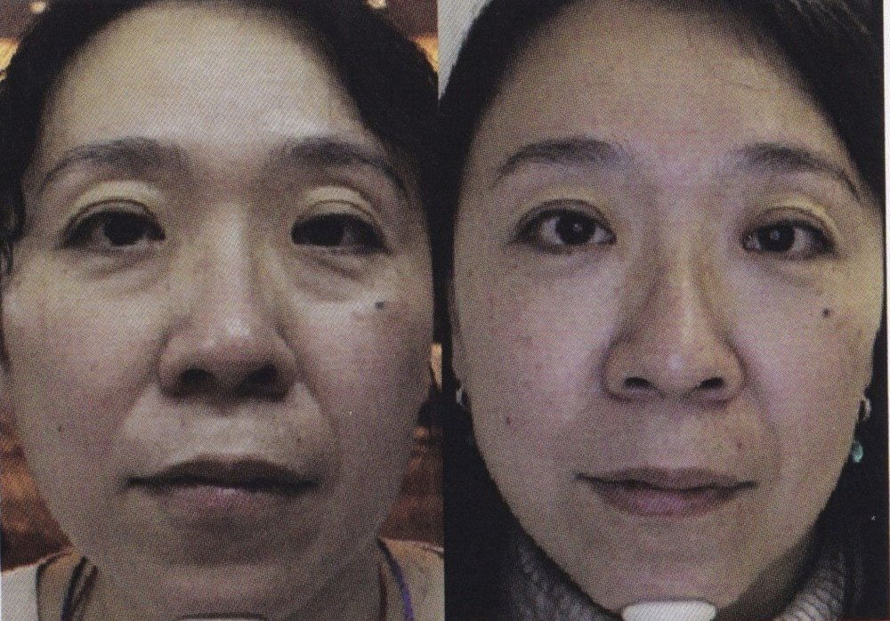 Before and After 4D Face Lift  This Fotona Laser surgery is
