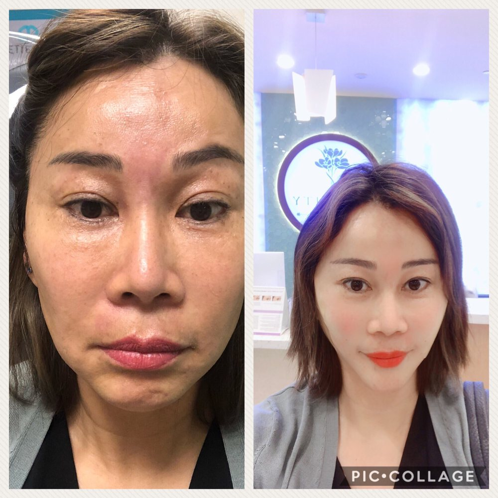 30 min face silhouette instalift before after , I really