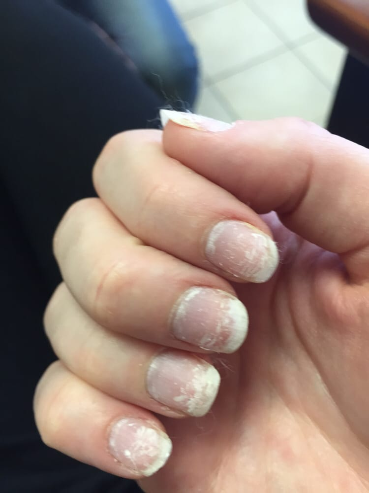 Ruined my nails when scraping off gel - Yelp