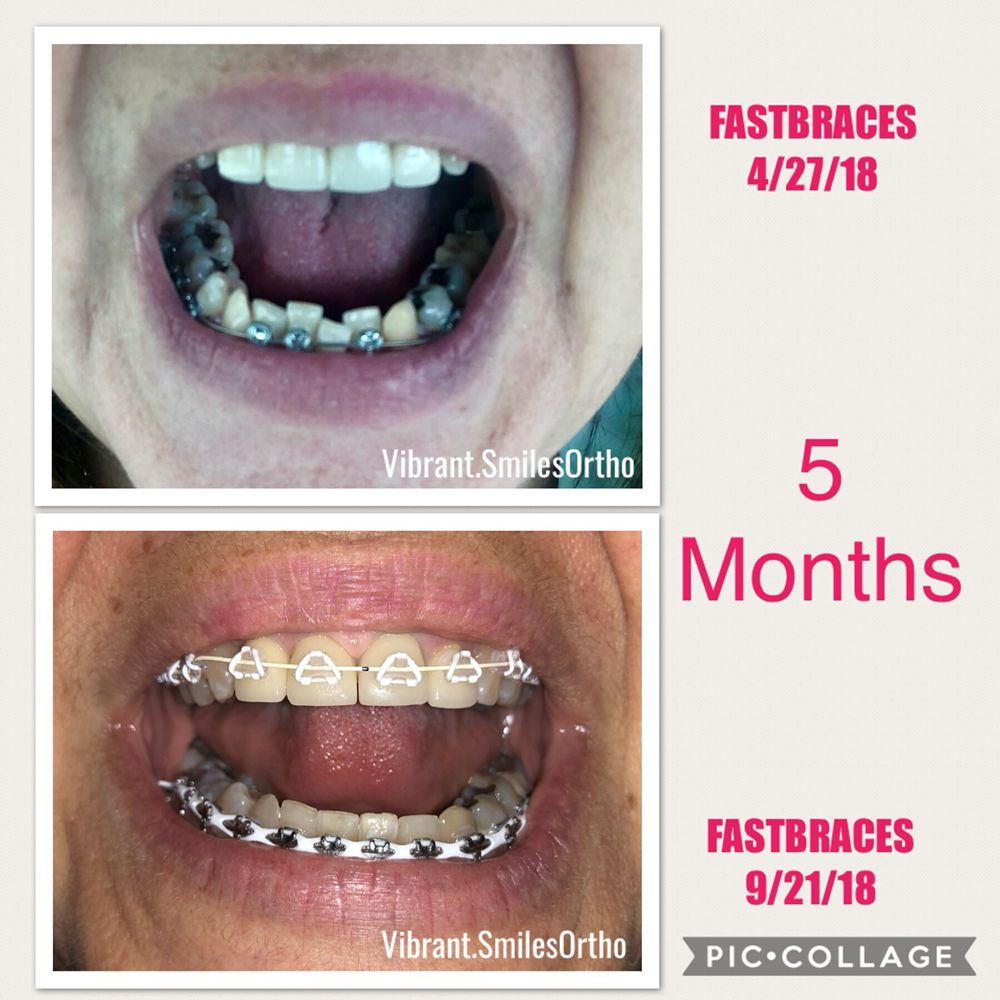 FASTBRACES 5 months into treatment  - Yelp