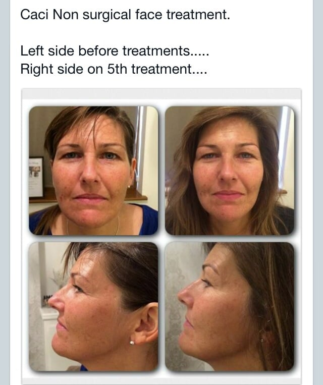 CACI Non surgical face lift after 5 treatments! - Yelp
