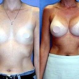 410cc Breast Implants