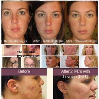 Skinatomy Laser Clinic - Medical Spas - 4092 Confederation
