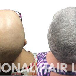 hair loss Tucson