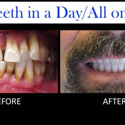 Tooth filling,dental fillings,tooth pain after filling,temporary tooth filling, <a target=_blank href=