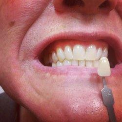 Radiant White Smiles Of Austin 45 Photos Teeth Whitening 6406