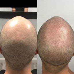 hair loss Glendale