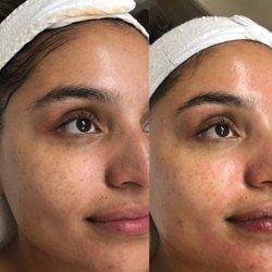 Iuliana Skin Care - 228 Photos & 23 Reviews - Skin Care