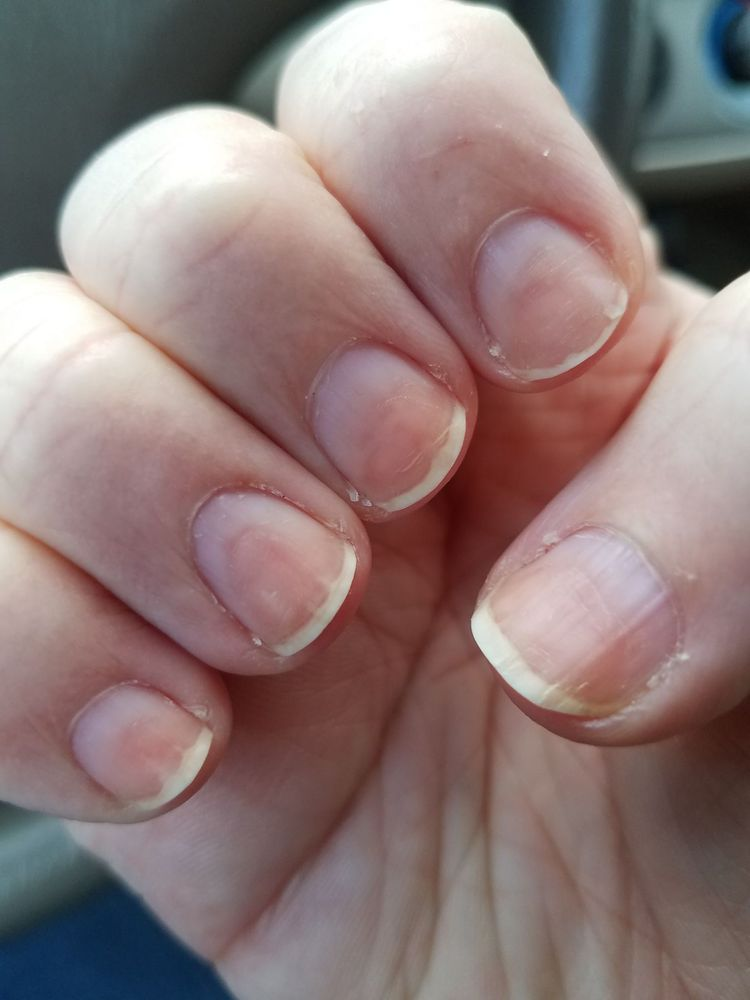 Literally feel like my nails were ruined. Good thing they are ...