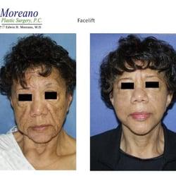 Photo of Moreano Plastic Surgery - Jackson Heights, NY, United States