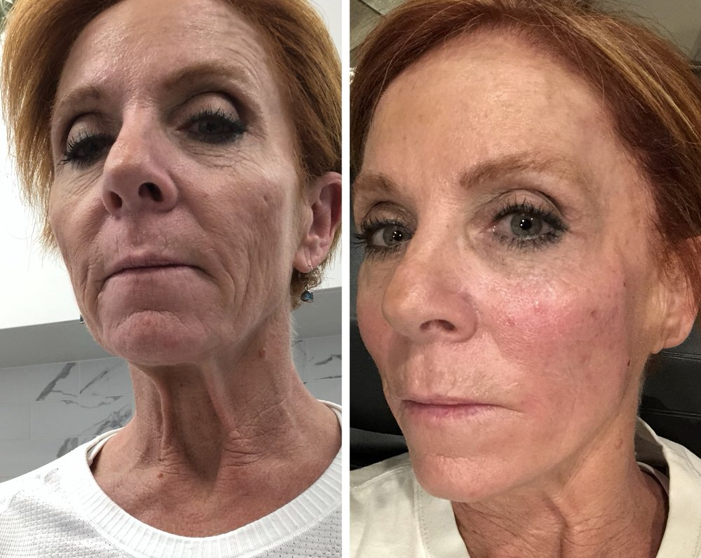 PDO Thread Lift pre & post photos, immediately after procedure  - Yelp
