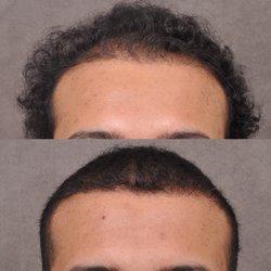 Beverly Hills Hair Group - 29 Photos & 14 Reviews - Hair Loss