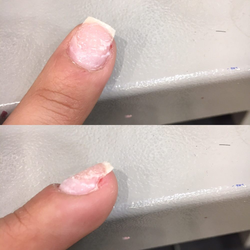 My nail after he cut it down and the tip was off (middle finger) - Yelp