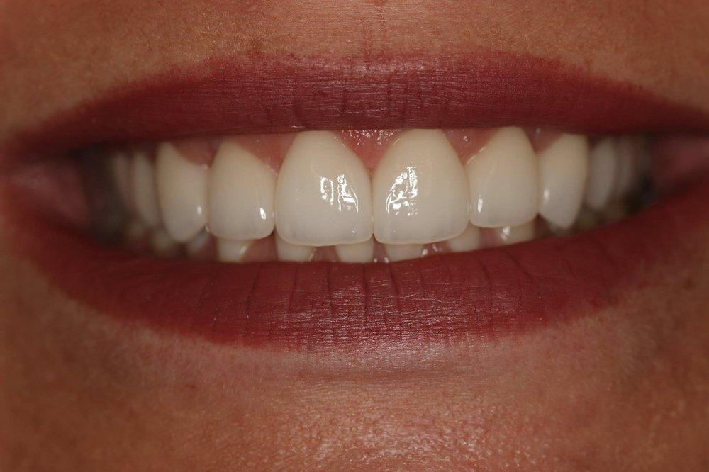 McRae Dental: 1067 S Wells St, Meridian, ID