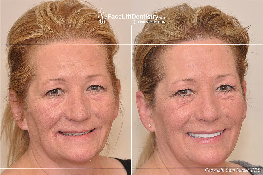 Deep Overbite Small Chin Facial Collapse And Porcelain