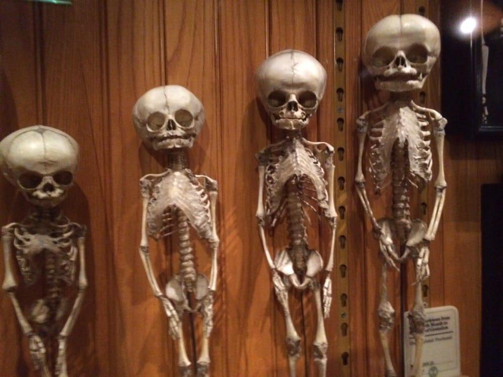 Awesome display of human skulls and anatomy !! - Yelp