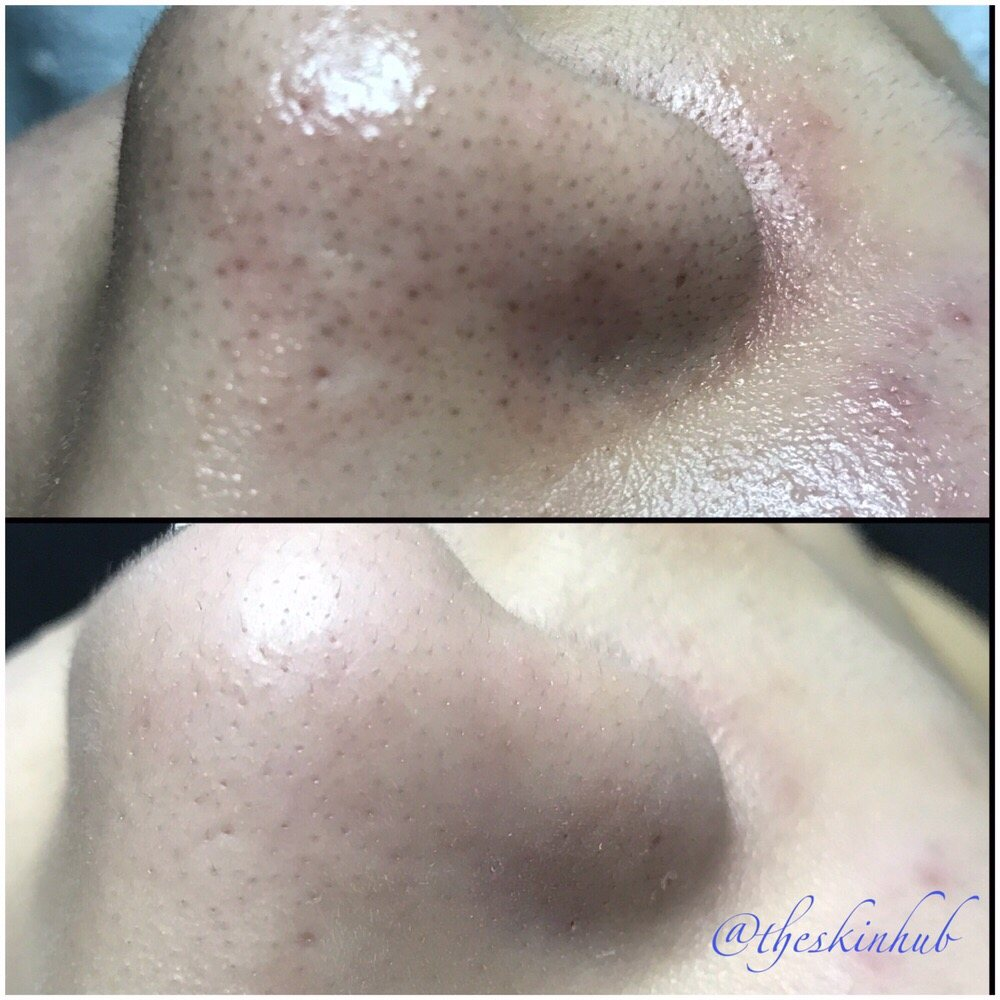 wife-sex-how-to-clean-facial-pores-anal