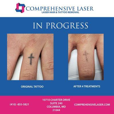 Comprehensive Laser 10710 Charter Dr Ste 240 Columbia Md Medical