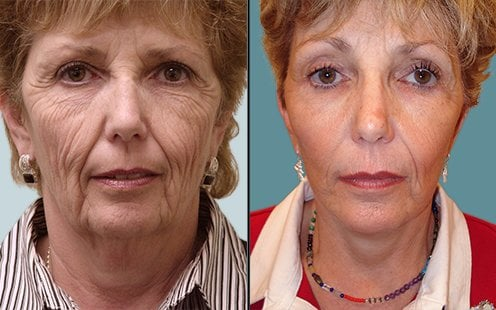 Facelift After Massive Weight Loss Provides Examples Of Dramatic