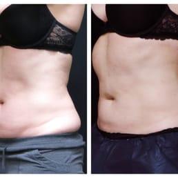 Fiber weight loss study image 17