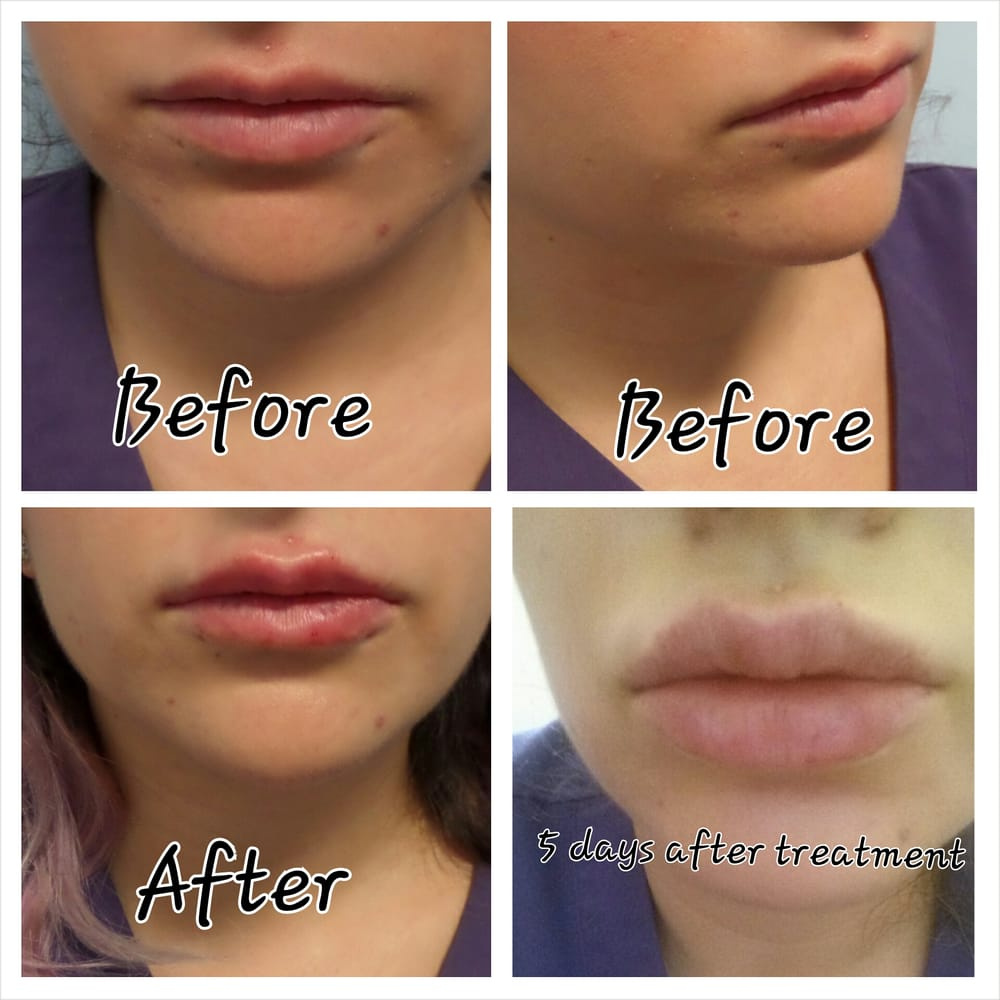 One Full Syringe Of Juvederm Injected In The Lips Yelp