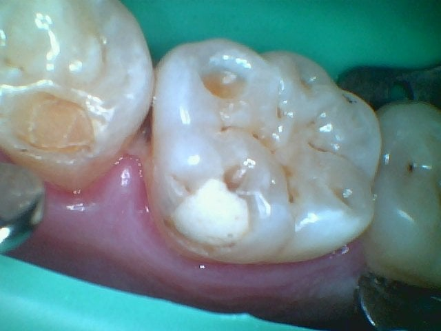 Before Tooth 19 With A Cavity Old Fillings Occlusal Trauma