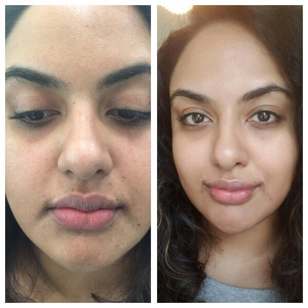 Under eye done with Stylage and Juvederm Plus for my lips - Yelp
