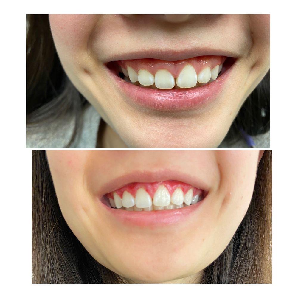 Haymarket Dental Complete Care