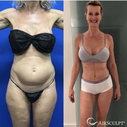 e90ef0afec Elite Body Sculpture - 30 Photos - Body Contouring - 3495 Piedmont ...