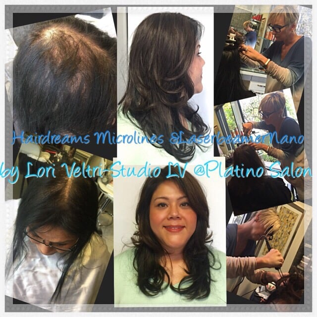 Hairdreams Microlines Beforeafter Yelp