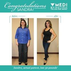 Medi Weightloss 13 Photos Weight Loss Centers 1201 Piper Blvd
