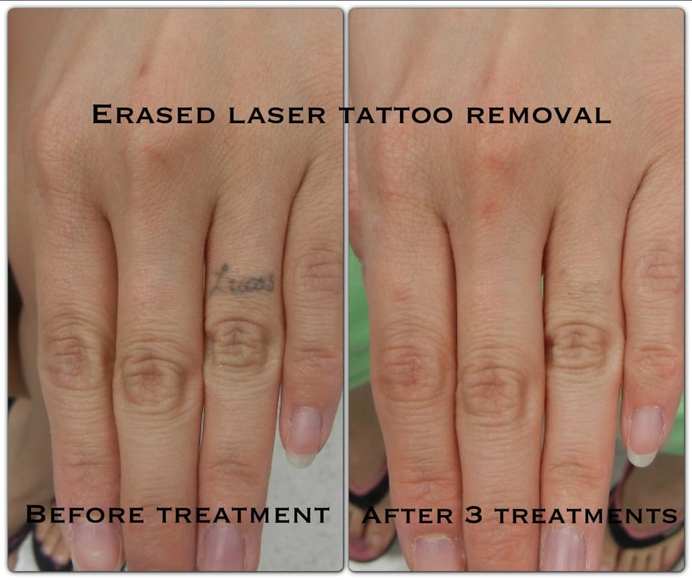 After The 3rd Treatment. Erased Tattoo Removal Las Vegas