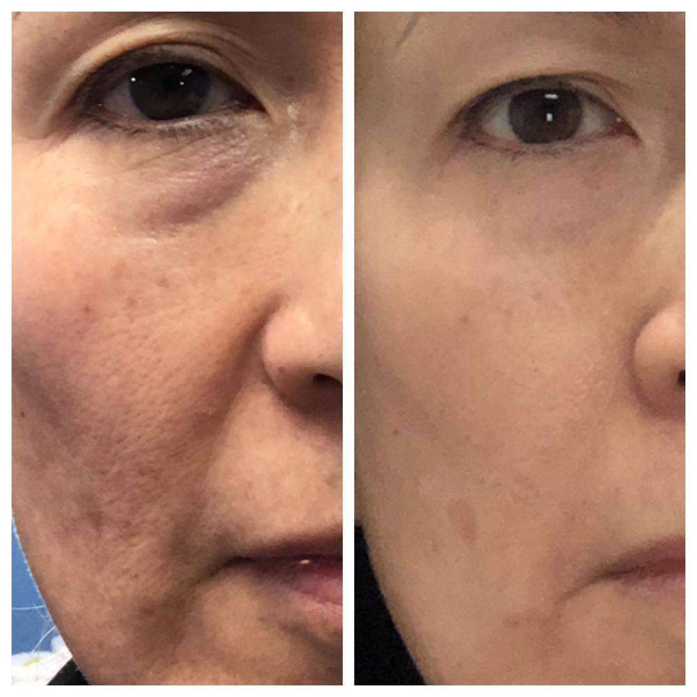 Before and After: TrueContour facial contouring with 1
