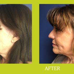 Facial plastic surgeon grand junction colorado