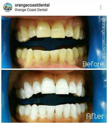 Orange Coast Dental 1717 Old Tustin Ave Ste A Santa Ana, CA