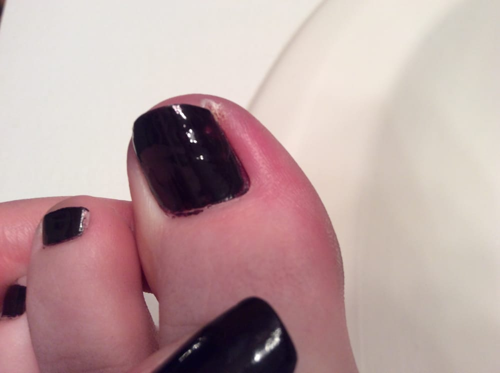 The irritation of the ingrown toenail this place caused. Its like ...