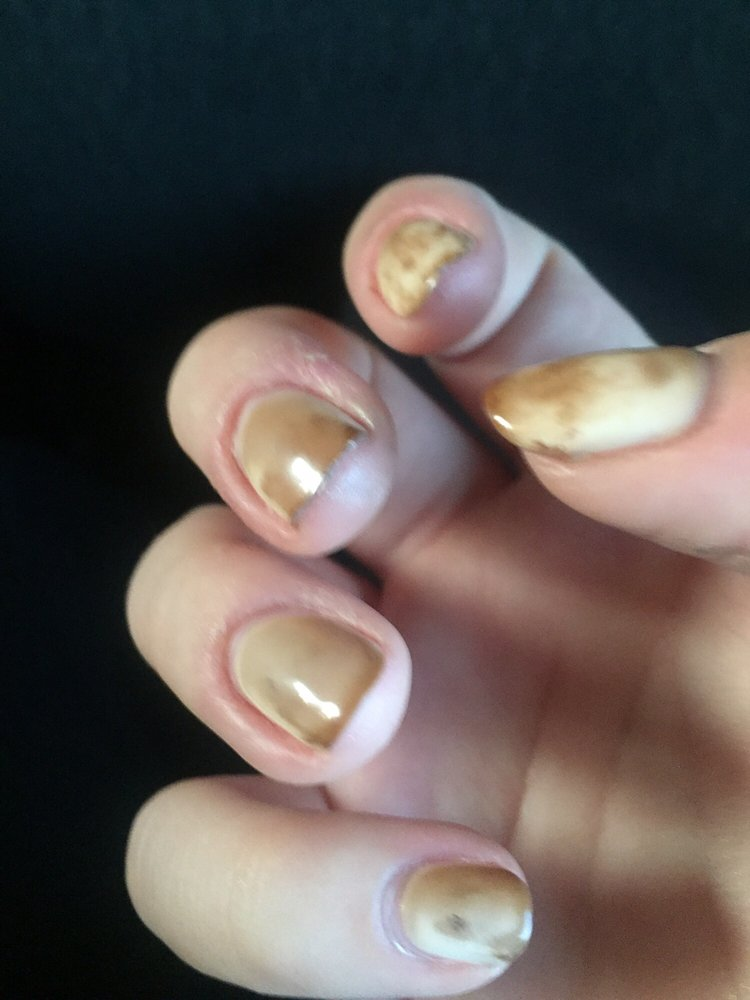 I\'ve NEVER been more disappointed in gel nails. After 3 days my ...