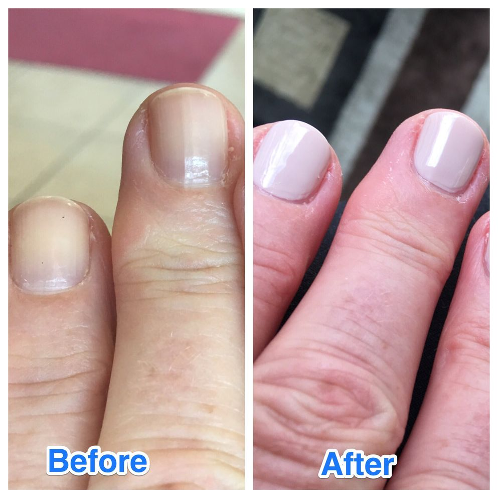 Photo Of Perfect Nails Lesville In United States Mani Before After