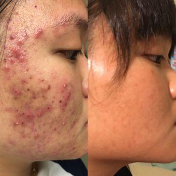 Acneology SkinCare Center - 30 Photos & 94 Reviews - Skin