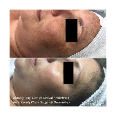 Bucks County Plastic Surgery Dermatology 700 S Henderson Rd Ste