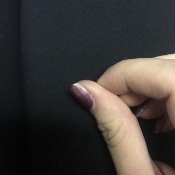 essay about portfolio dog bite